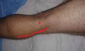 aneurizma_poplitealne_arterije