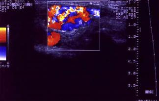 color_doppler_ultrazvuk-varikozno_izmenjena_površna_vena_noge